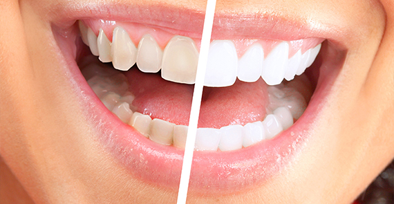 Laser Teeth Whitening Results